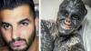 Vuole assomigliare a un alieno, così un 32enne si è fatto togliere naso e orecchie