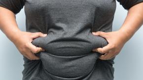 Nel 2045 il 22% della popolazione mondiale rischia di essere obesa