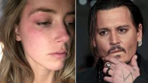 """Johnny Depp accusa Amber Heard: """"i lividi che ha mostrato sono finti!"""""""