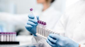 """Scoperta una nuova cellula che potrebbe """"uccidere"""" i tumori"""