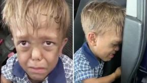 """""""Voglio morire"""": madre mostra gli effetti del bullismo sul figlio affetto da nanismo"""