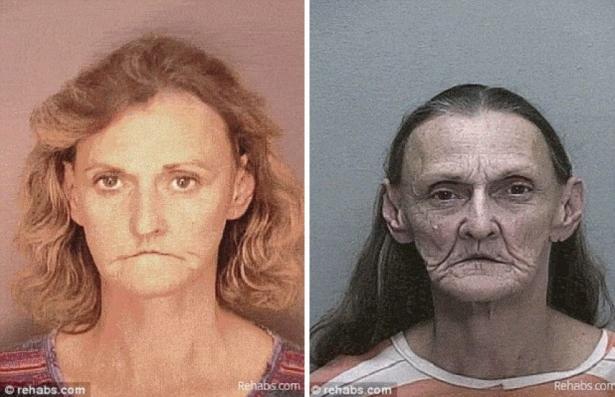 Gli effetti della droga sulle persone prima e dopo - Sali da bagno droga effetti ...
