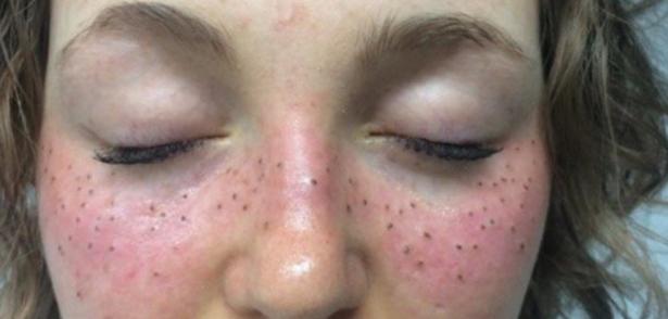 Il pigmentary nota su una melatonina di faccia